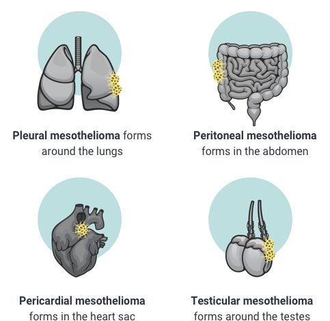 Types of mesothelioma by location in the body